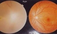 恐怖!桂林女子注射玻尿酸被扎进血管致右眼暴盲