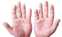 秋季手掌脱皮是干燥惹的祸?有可能预示着身体出现这4种疾病!